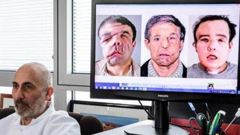 Hombre se sometió a dos trasplantes de cara — Francia