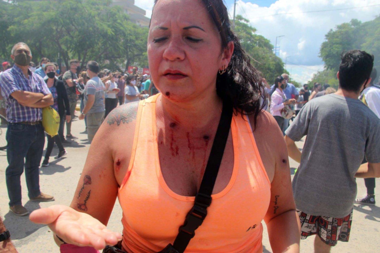 """La Comisión Interamericana de Derechos Humanos """"preocupada"""" por los  incidentes en Formosa"""