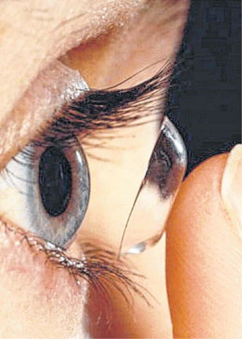 ef0be7da3e774 Lentes de contacto  su mal uso puede causar lesiones